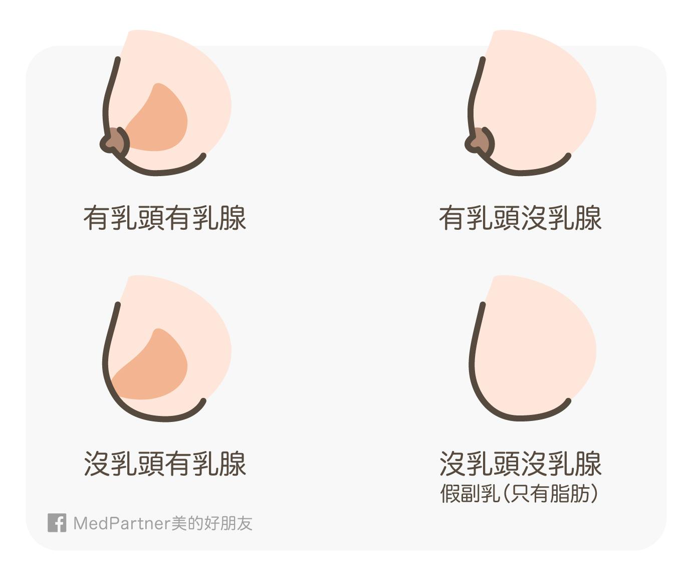 乳房的四種型態