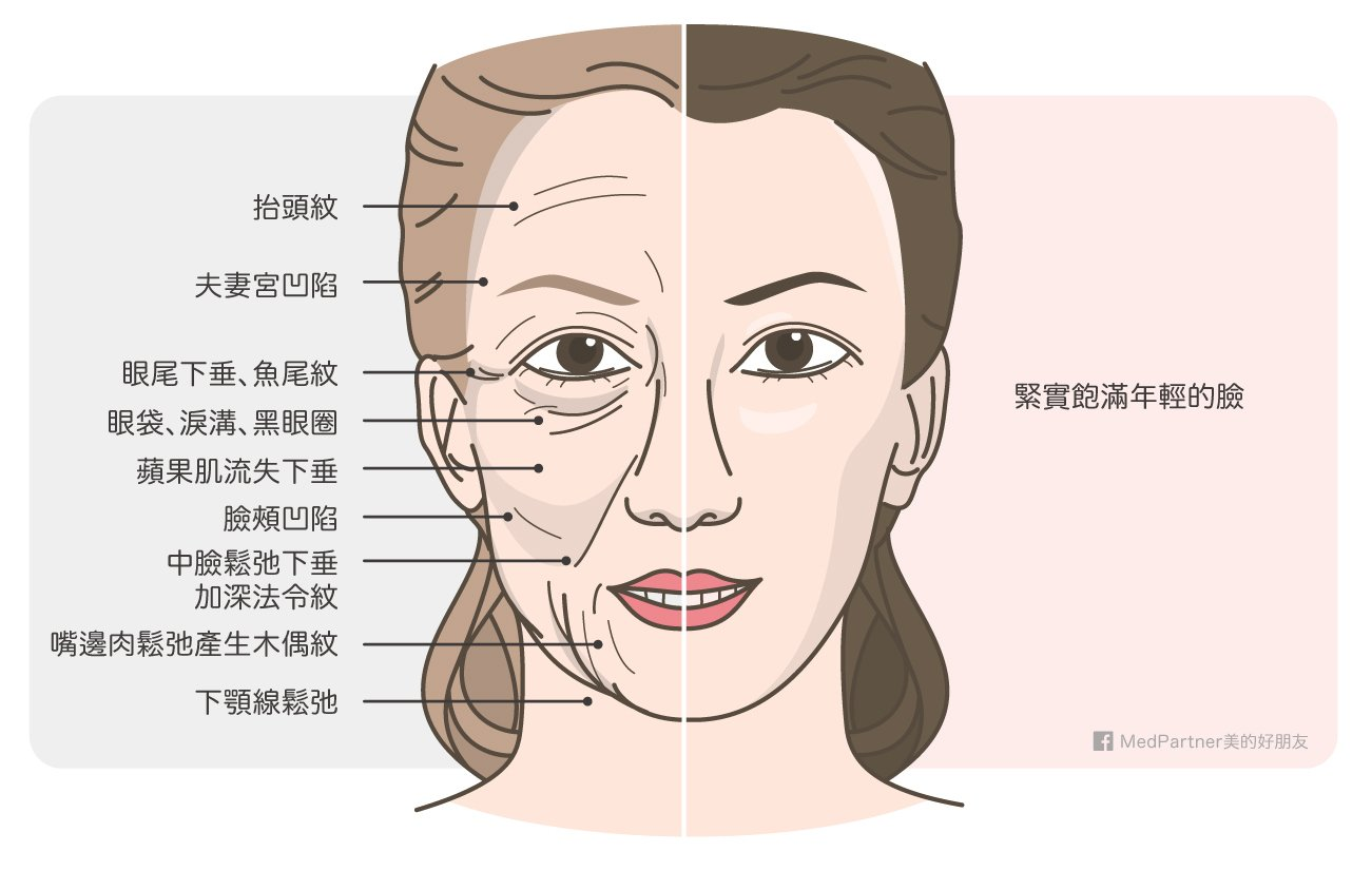 年輕與老化的臉對照