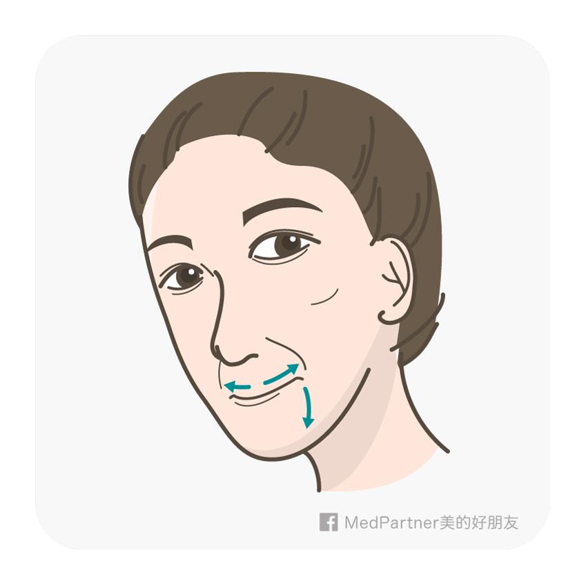 抿嘴造成的法令紋