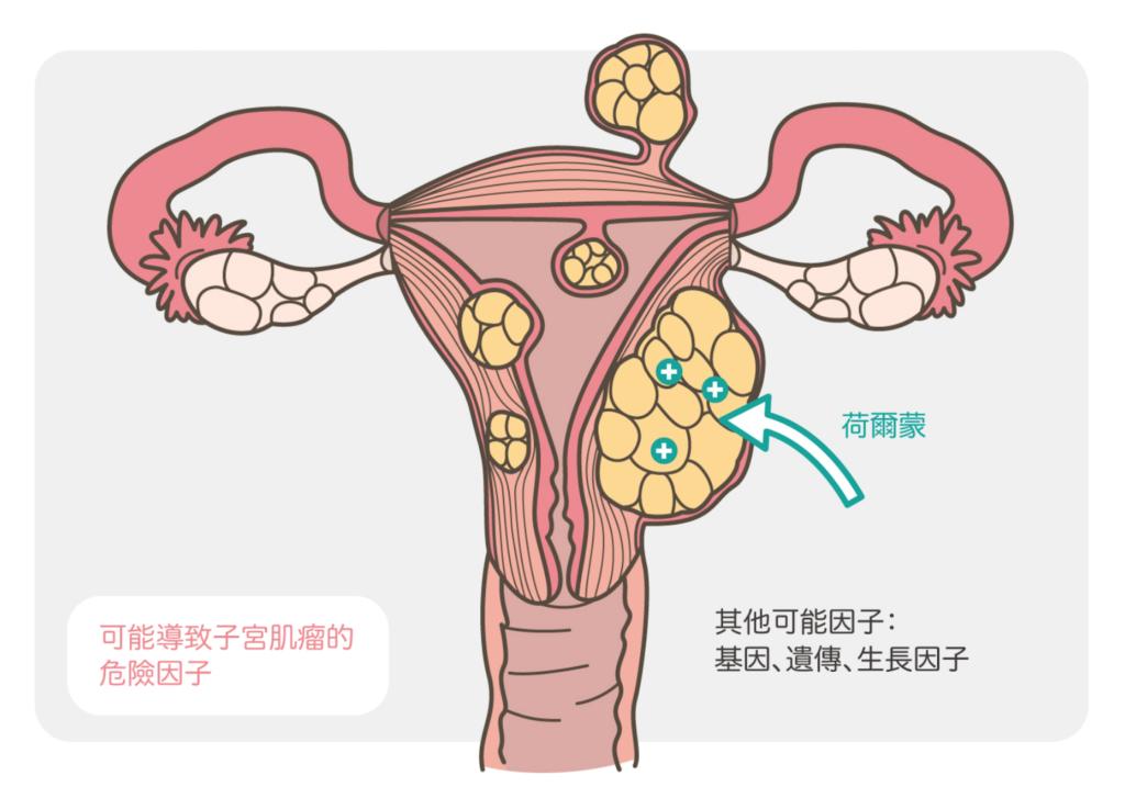 子宮肌瘤成因