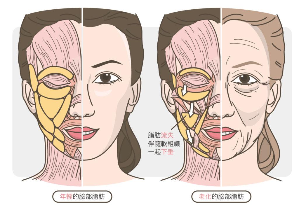 臉部脂肪的老化