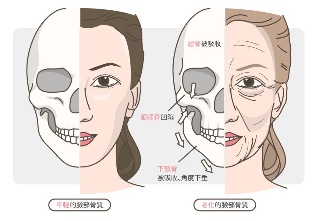 臉部骨質的老化
