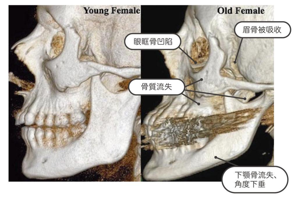 美白part2_骨質比較照片
