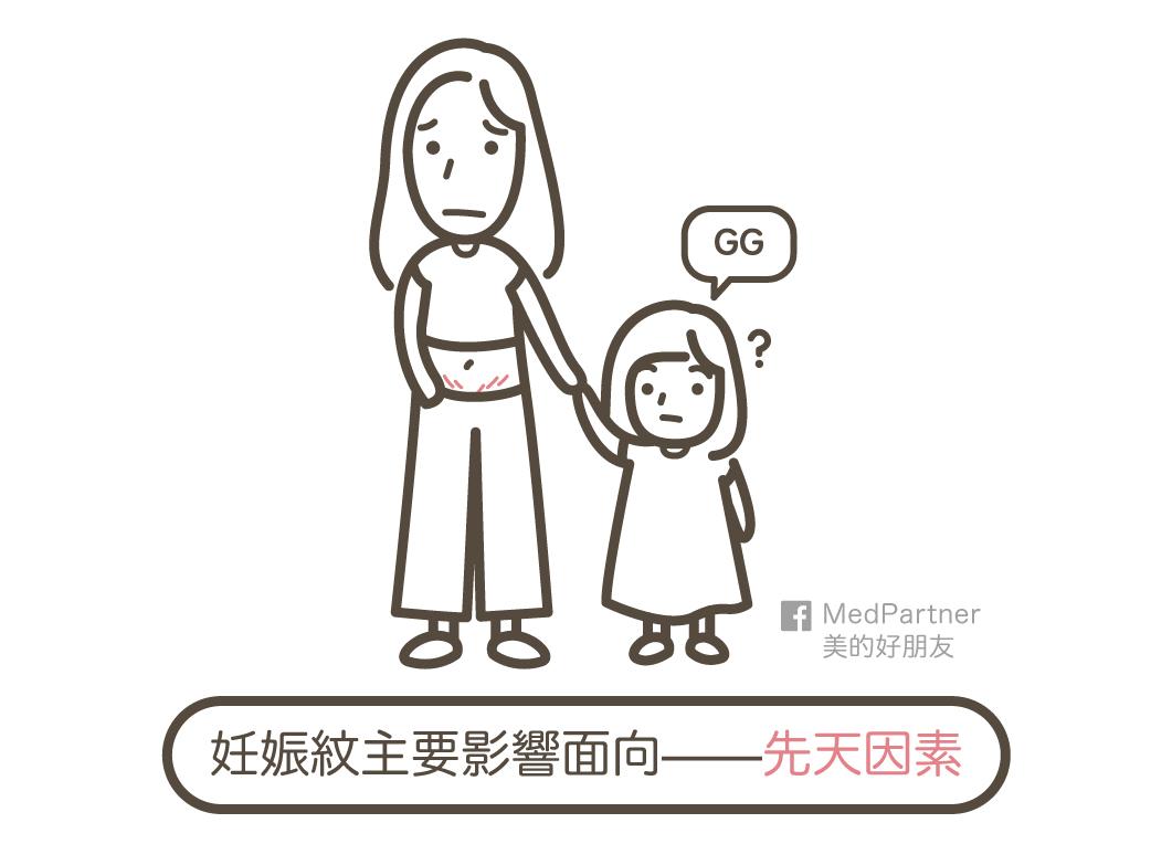 影響妊娠紋的先天因素