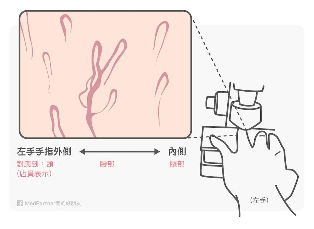 手指微血管