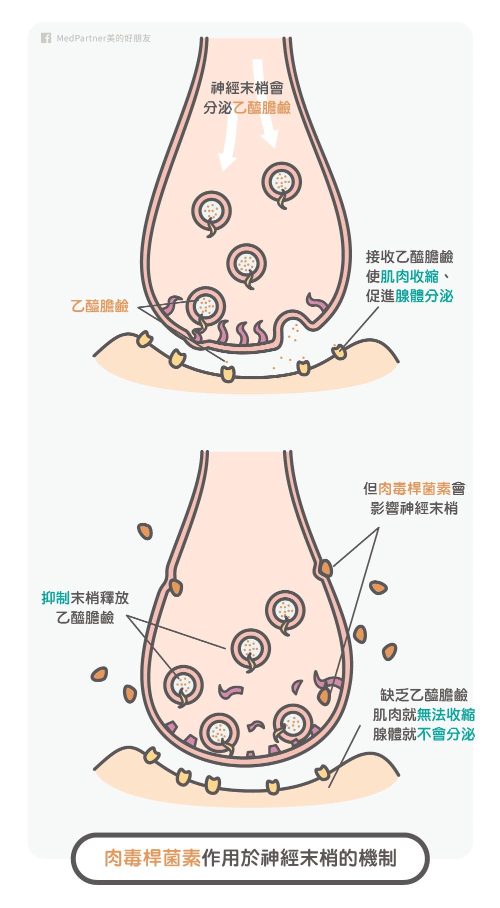 肉毒桿菌素_作用機制