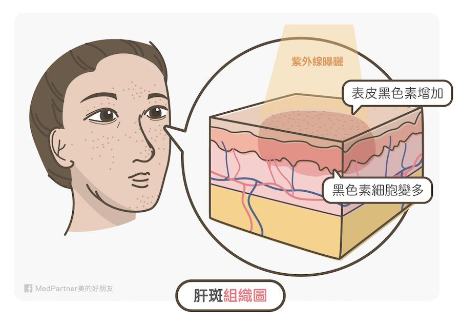 肝斑組織圖