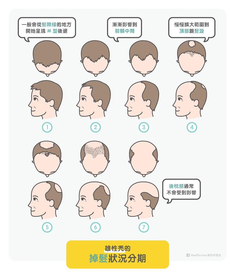 雄性禿的掉髮狀況分期