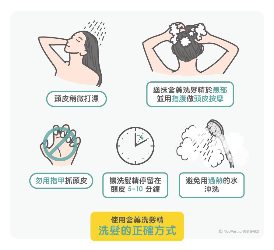含藥洗髮精洗髮方式