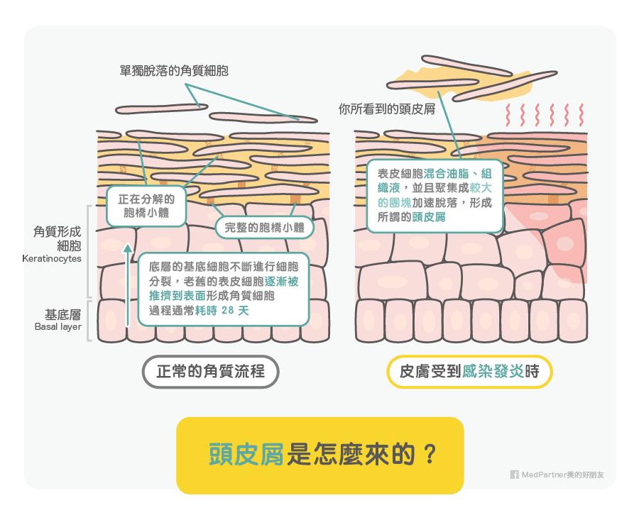 角質流程與頭皮屑來源