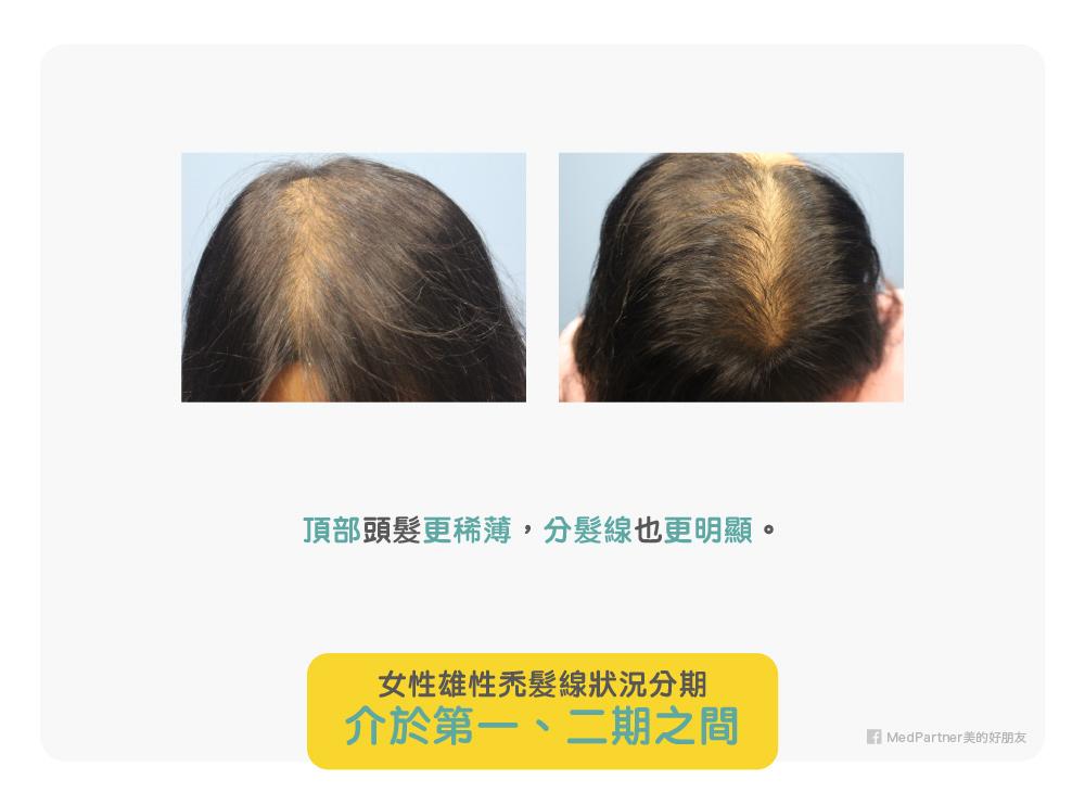 女性雄性禿第一、二期之間