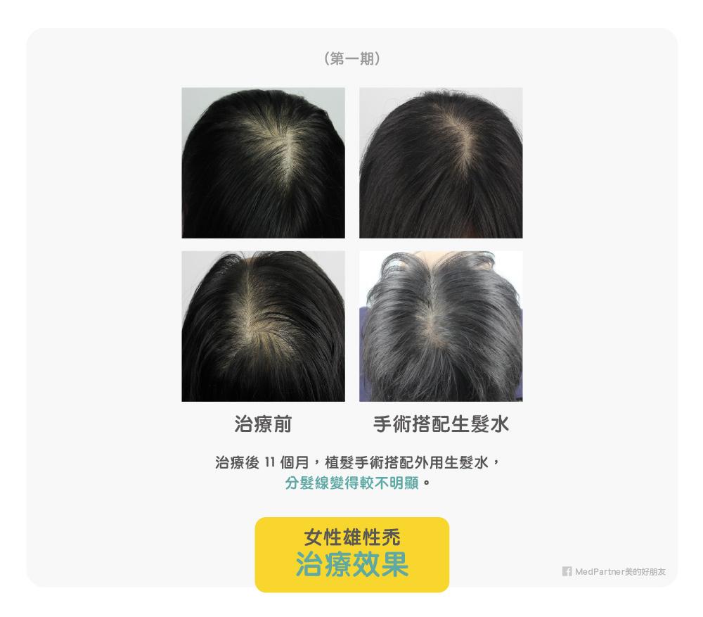 女性第一期植髮手術搭配生髮水治療效果