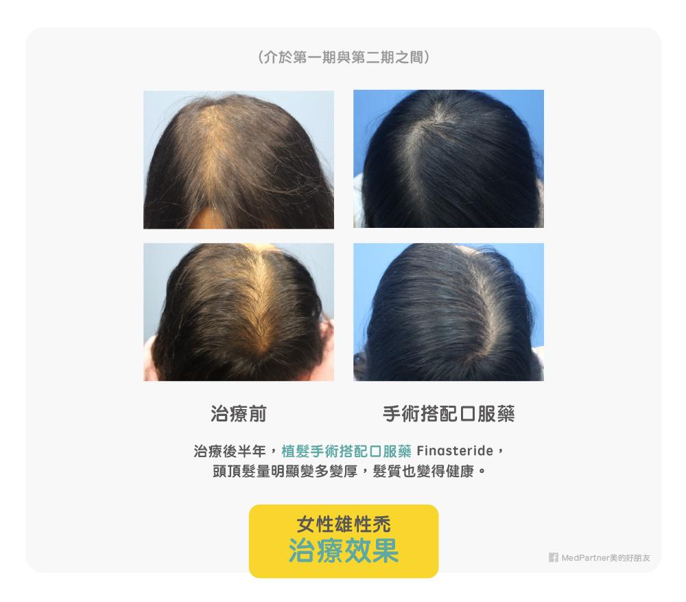 女性一二期之間,植髮手術搭配口服藥治療效果