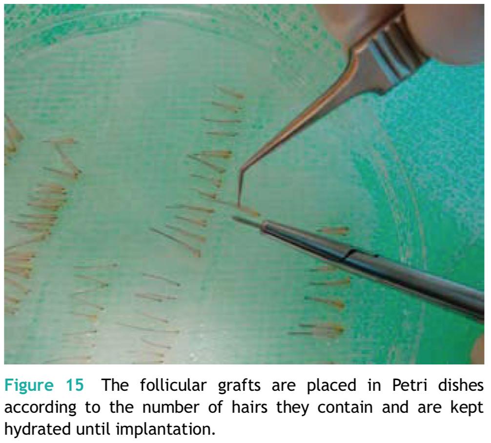 FUT植髮手術分髮過程,將多餘的組織移除