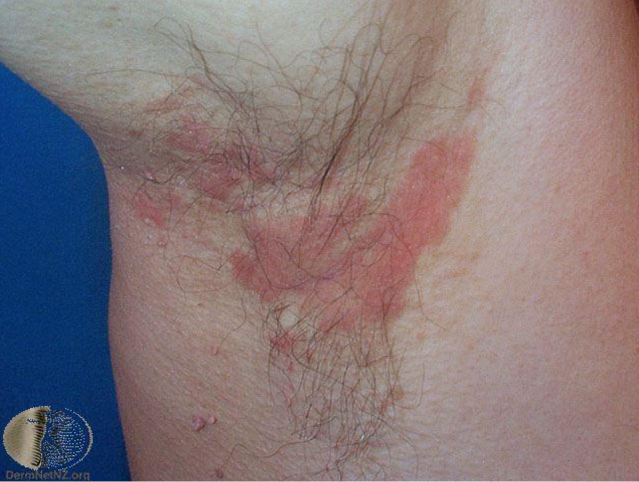 發生在身體及皮膚皺摺處的脂漏性皮膚炎