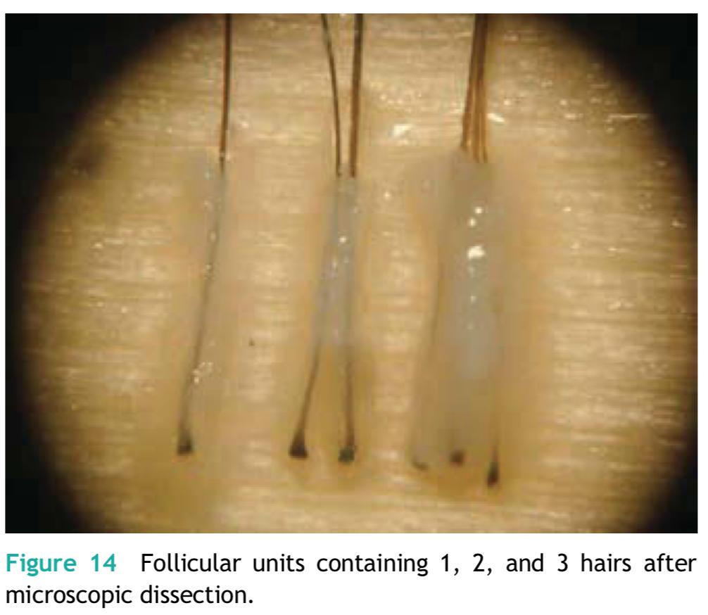 每株毛囊單位不一定只含一根頭髮,有時會有2-3根