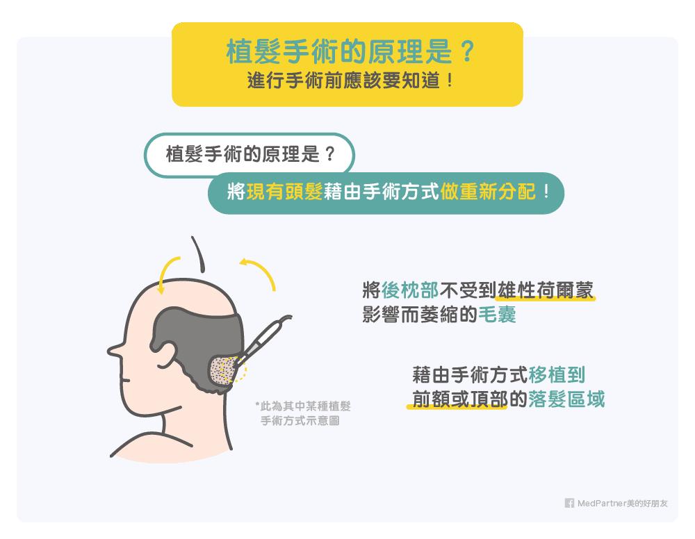 植髮手術的原理