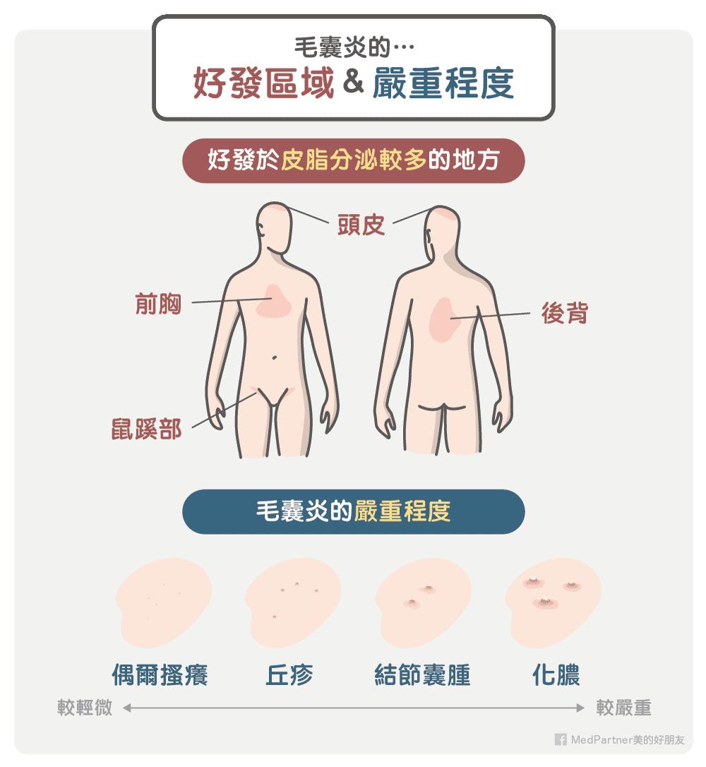 毛囊炎的好發區域與嚴重程度
