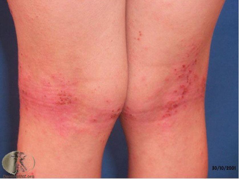 在四肢屈側(膝蓋後方)的異位性皮膚炎