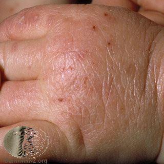 異位性皮膚炎,手部。