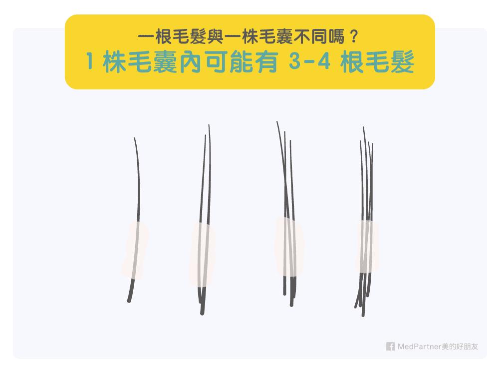 一株毛囊可能有3-4根頭髮