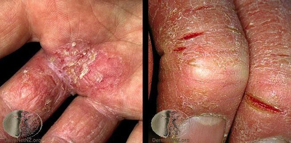 左:富貴手(媽媽手)的濕疹變化,可看到紅腫、發炎、脫屑反應。右:富貴手(媽媽手)發生脫屑反應,並且因為過度乾燥出現裂傷