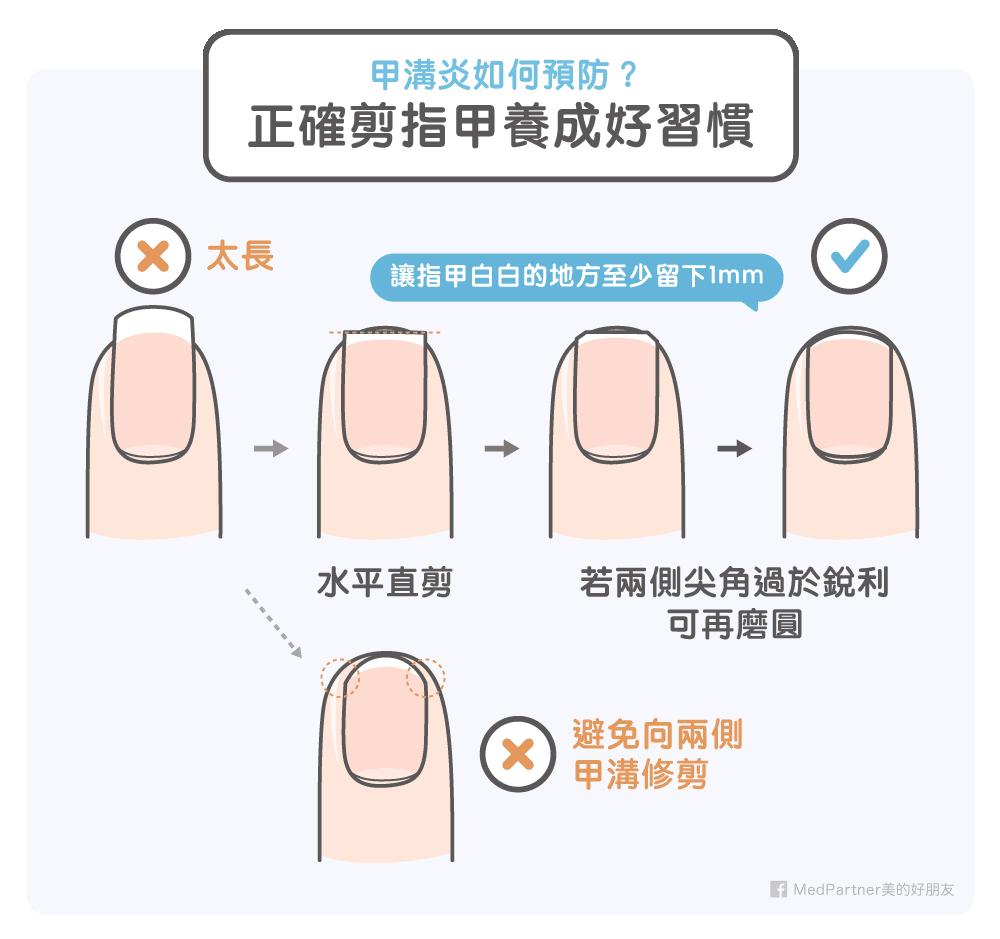 正確剪指甲的習慣
