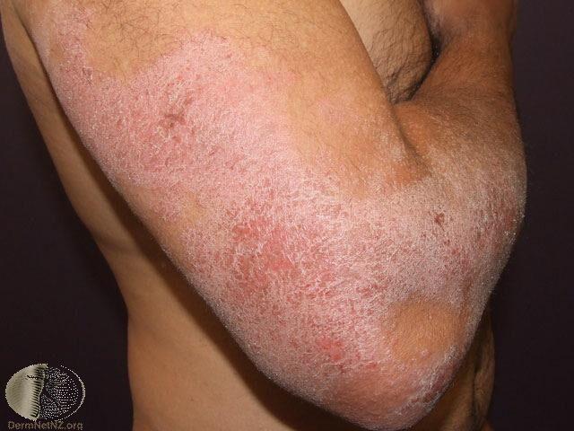 異位性皮膚炎的慢性濕疹變化