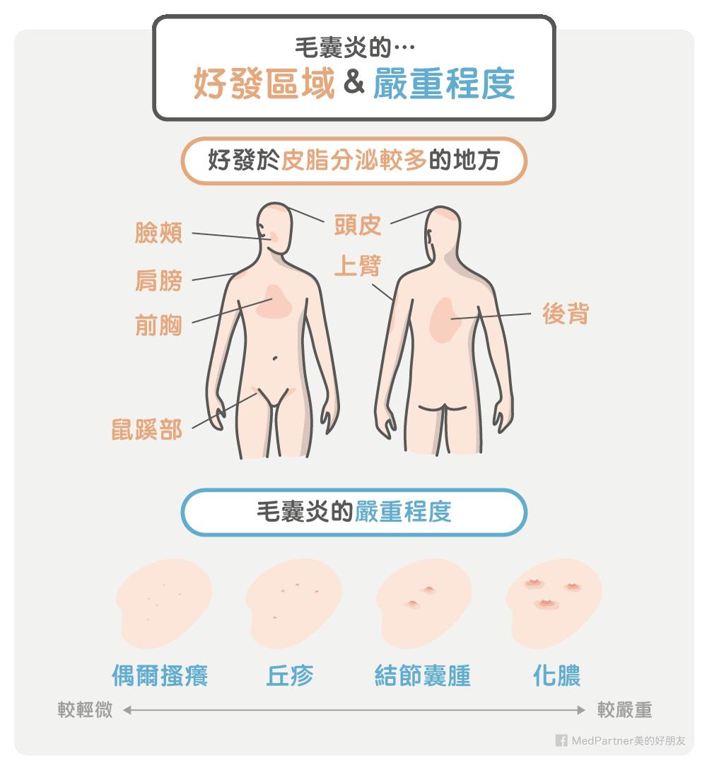 毛囊炎好發區域與嚴重程度