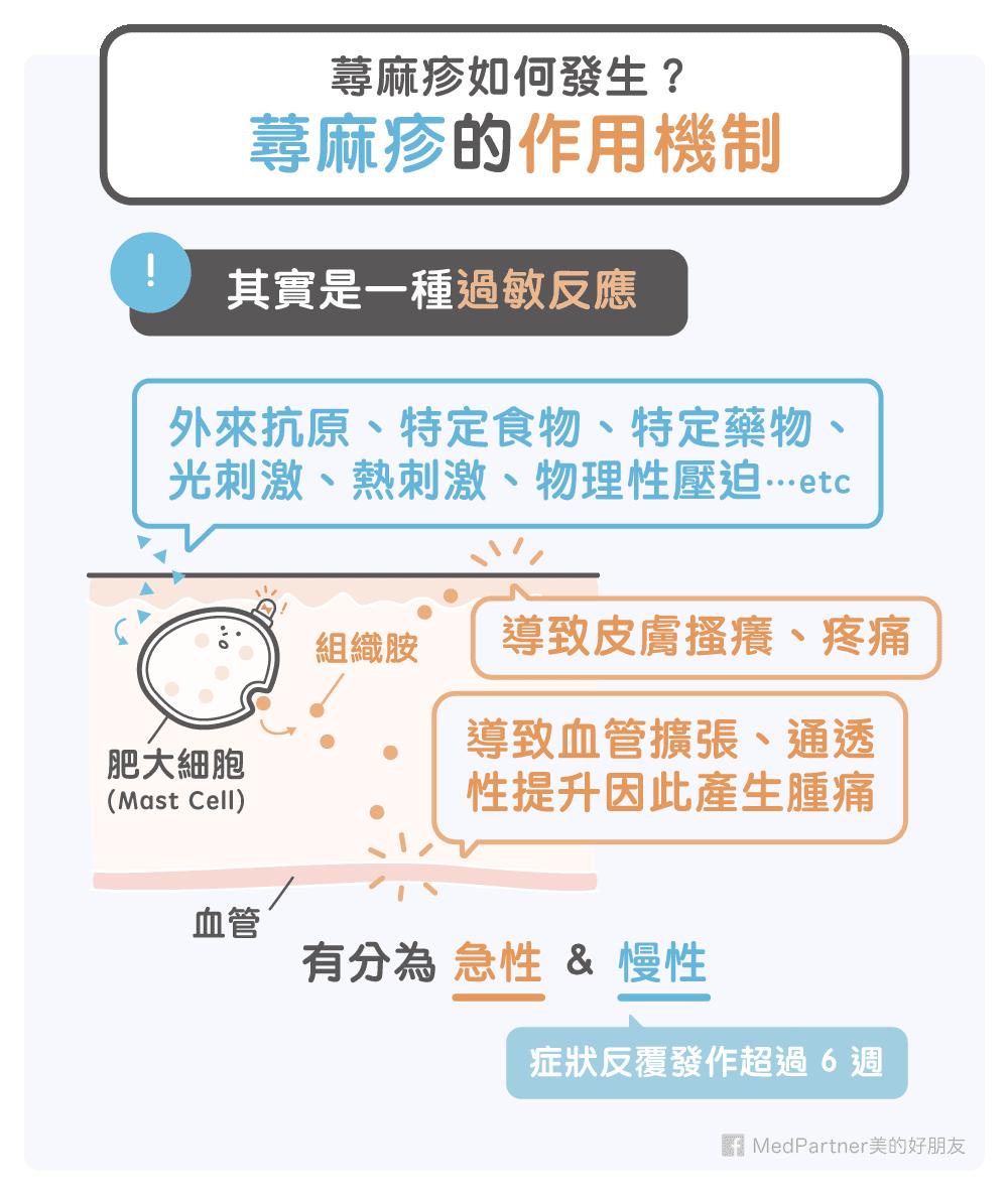 蕁麻疹作用機制