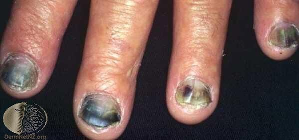 呈現紫黑色與部分黃綠色的灰指甲