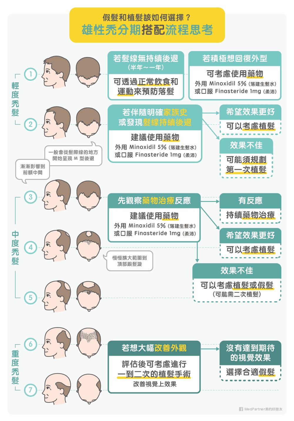 雄性禿分期搭配流程思考