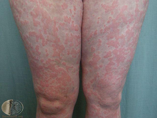 在腿部的蕁麻疹,界限明顯、紅色隆起的斑塊