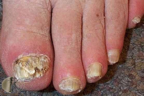 增厚、脫屑、變形的灰指甲