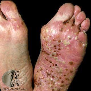 出現在腳部的膿疱性乾癬 ,出現廣泛的發紅、脫屑、大量膿皰