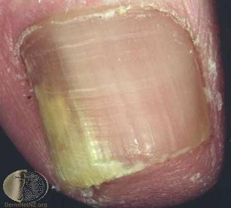 側邊部分感染的灰指甲