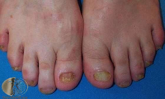 雙腳都感染的灰指甲,合併香港腳