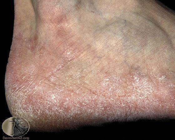 在足跟以及足部兩側角質異常增厚的香港腳。通常搭配使用幫助角質軟化的成分會有更好的治療效果。