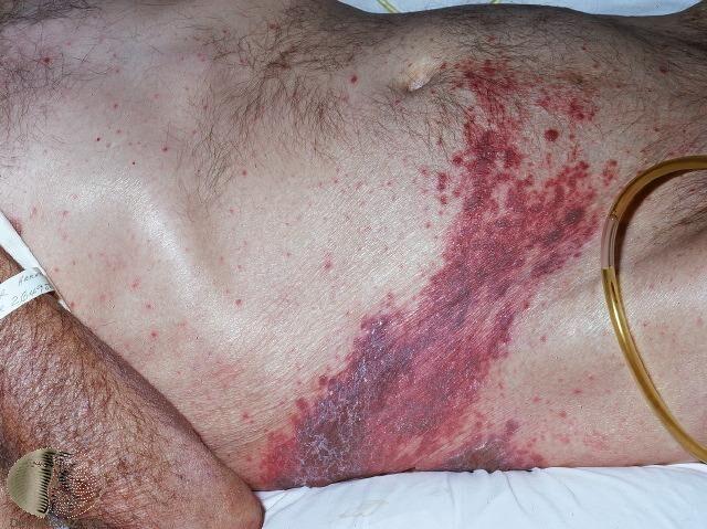 典型的帶狀皰疹,出現在單側、帶狀排列的水皰
