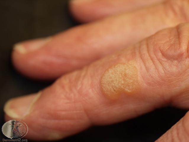 長在手指的尋常疣