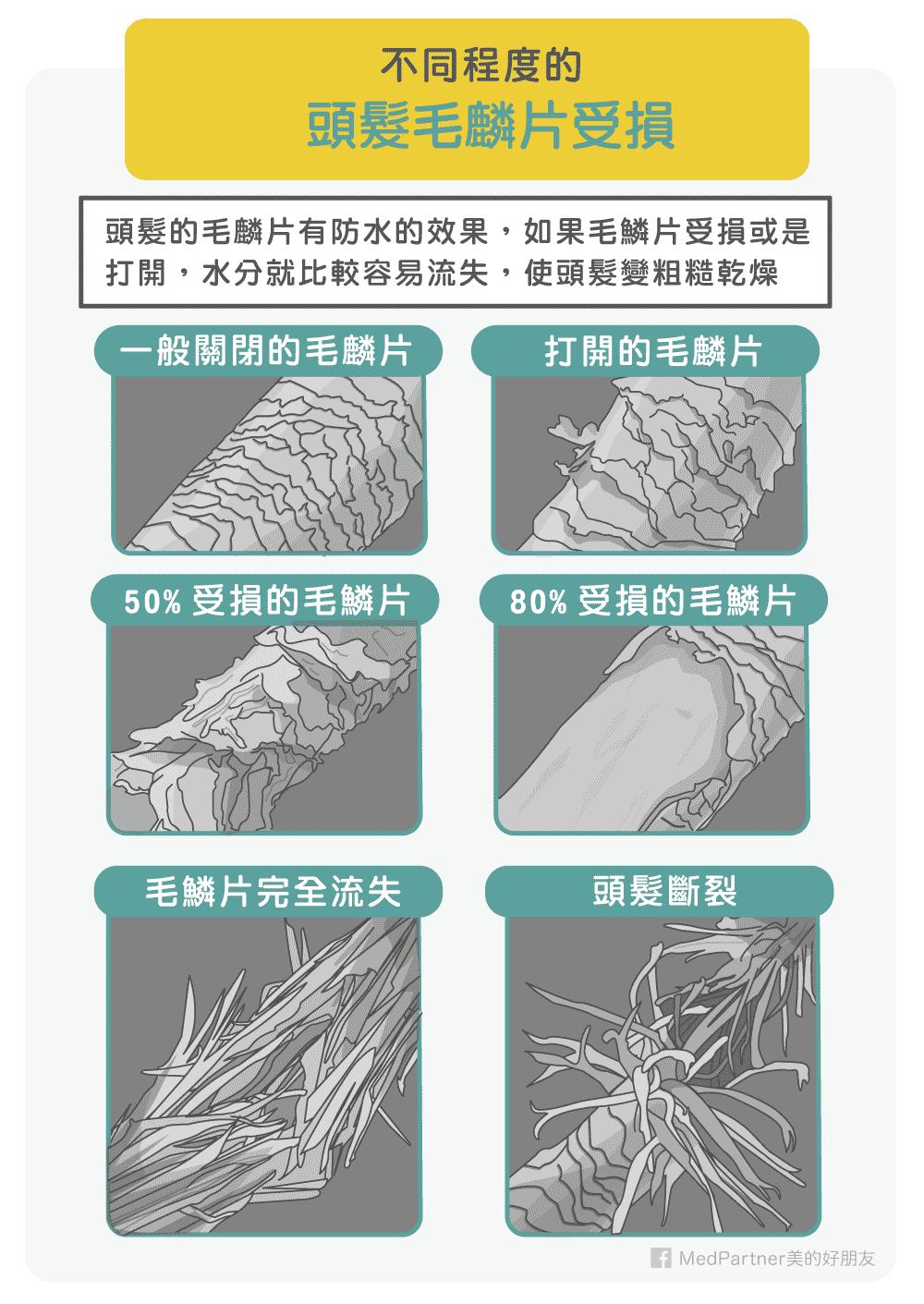 不同頭髮毛鱗片受損程度