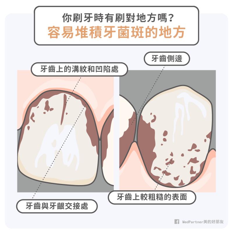 牙菌斑堆積處