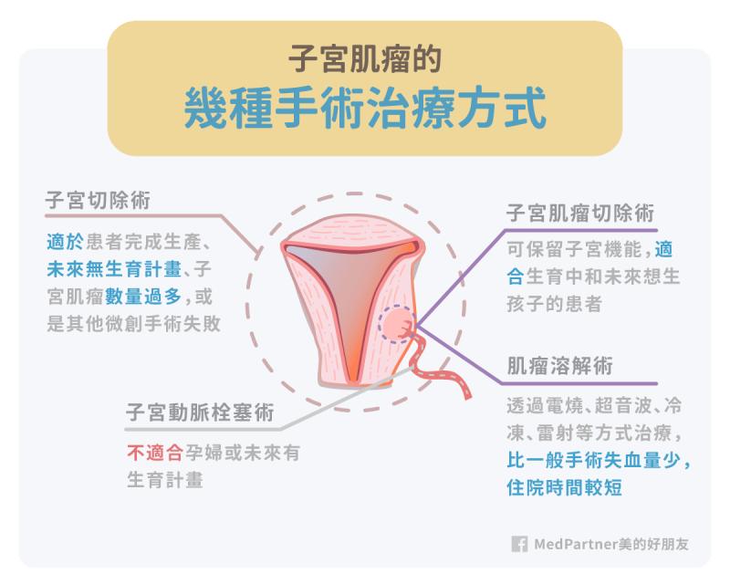 常見子宮肌瘤手術治療方式