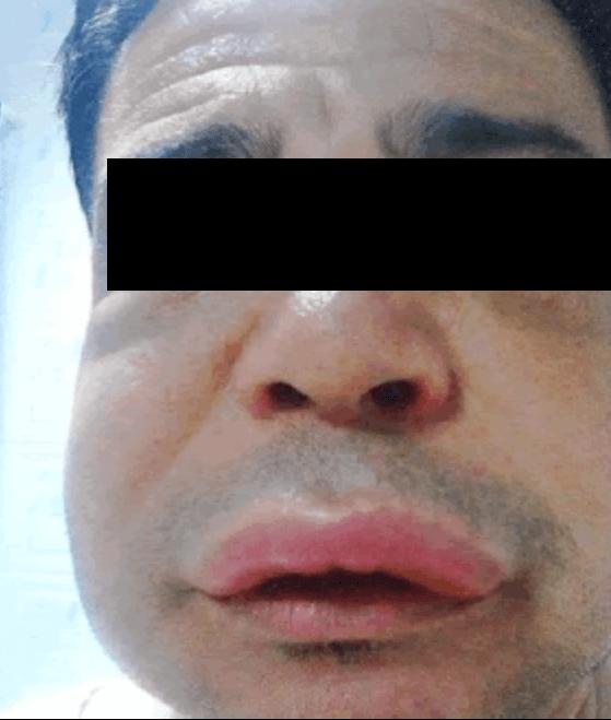臉部的血管性水腫
