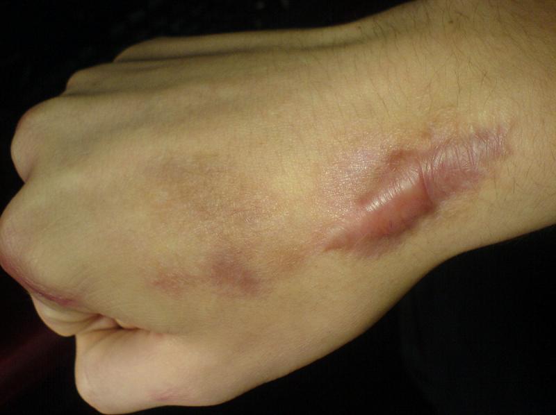 手術後產生的蟹足腫