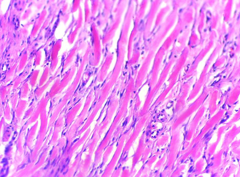 蟹足腫組織的顯微影像