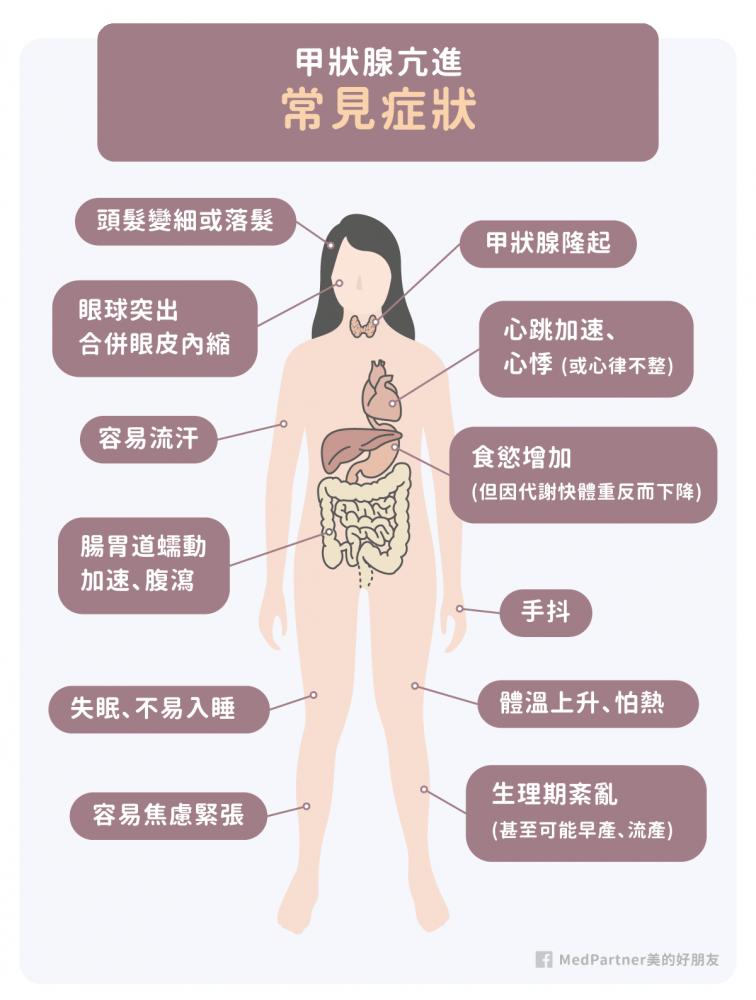 甲狀腺亢進的常見症狀