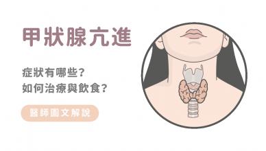 甲狀腺亢進的症狀與治療