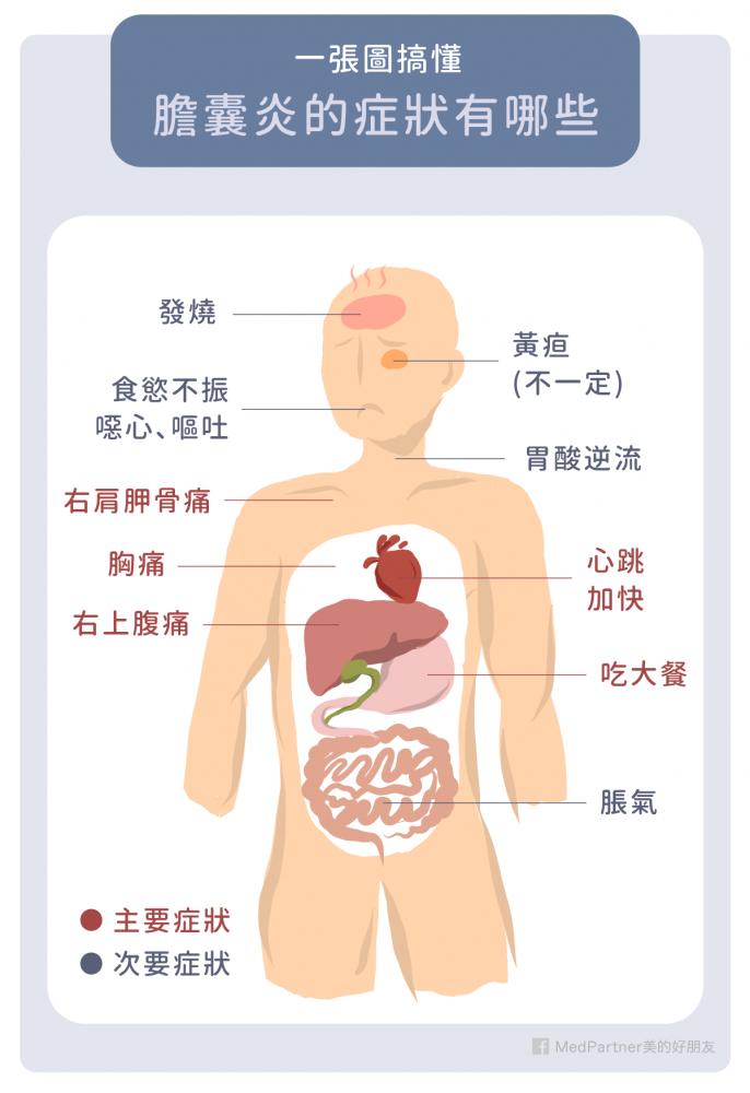 膽囊炎的常見症狀