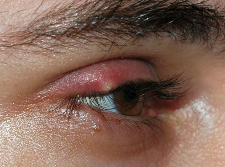 感染約五天的針眼(麥粒腫)。Stye (hordeolum) after approximately 5 days, by Andre Riemann ,wikipedia